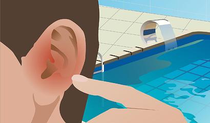 Foto de Prevenir la Otitis del Nadador
