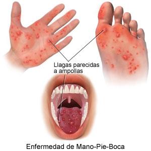 Foto de Manos, pies y boca
